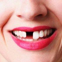 К чему снится выпадение зубов без крови: самое подробное толкование!