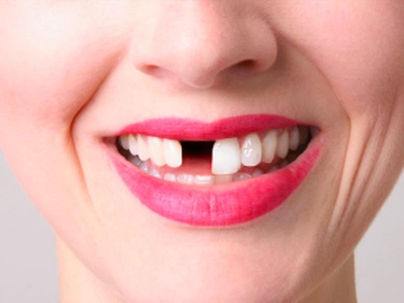 К чему снится девушка без зуба фото