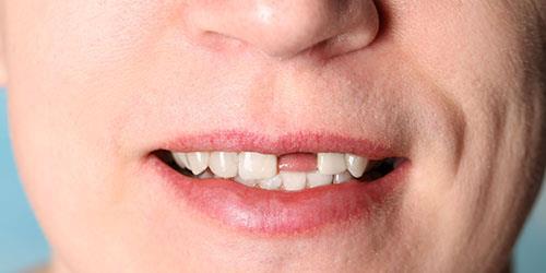 к чему снится что выпадают гнилые зубы