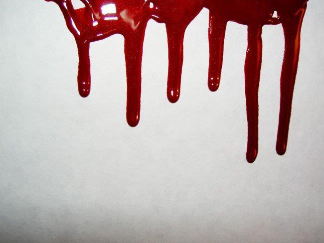 Снится кровь любимого человека фото