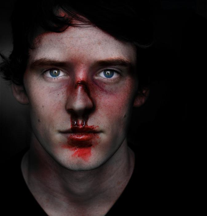 Фото К чему снится разбитый нос с кровью