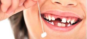 Вырывать самому себе зуб