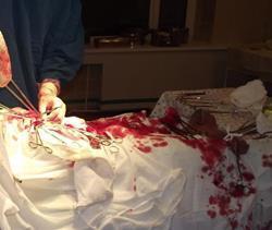 Кровь в операционной