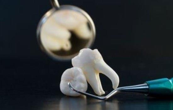 К чему снится вырванный зуб без крови фото