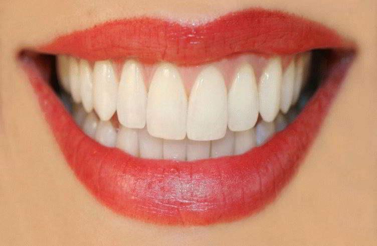 К чему снится шатающийся зуб без крови фото