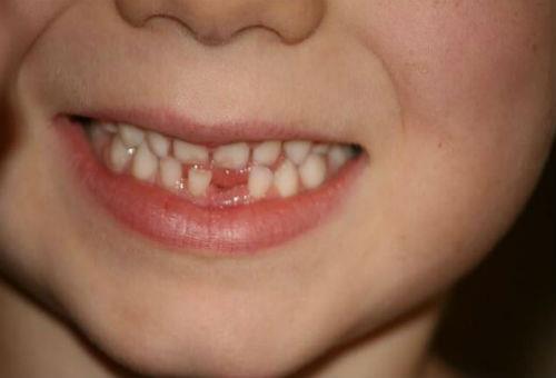 сломаный зуб выпал во сне
