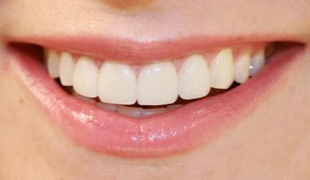 otbelivanie-zubov-beyond-10