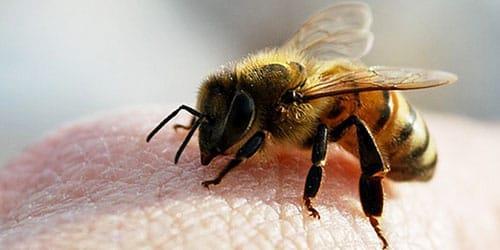 укус пчелы в руку