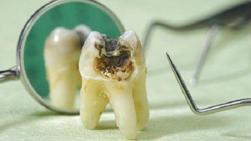 выпавший гнилой зуб