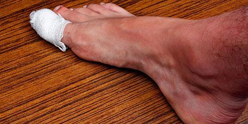 забинтованный палец на ноге