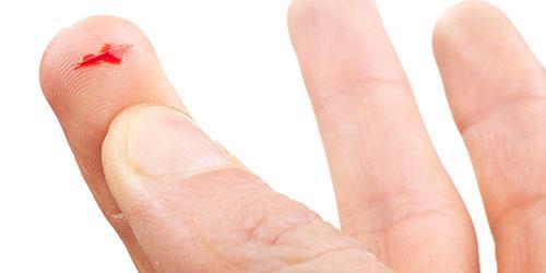 порезать палец во сне