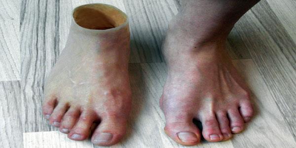 К чему снится протез ноги фото