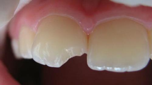 сонник зубы крошатся