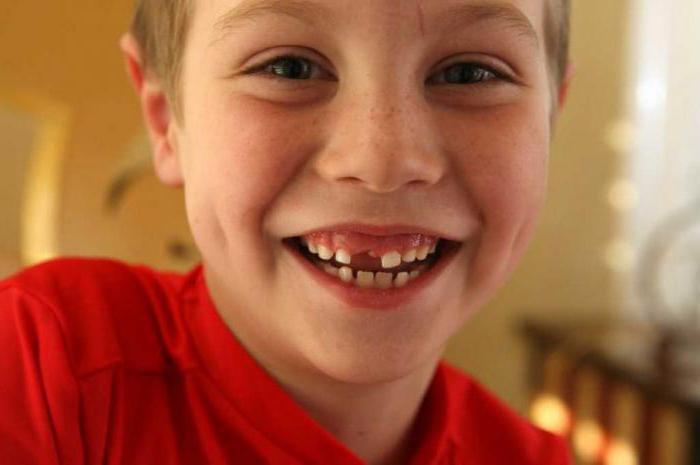 К чему снится выплевывать зубы без крови фото