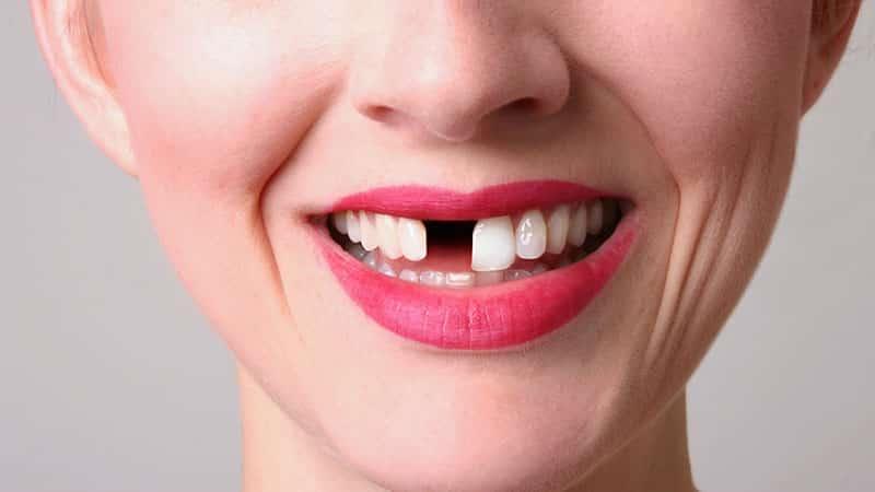 Если во сне вы чистите или полощете зубы — это означает, что от вас потребуется огромная борьба, чтобы сберечь ваше счастье.