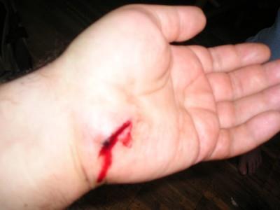 К чему снится рана на пальце руки фото