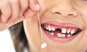 Молочный зуб