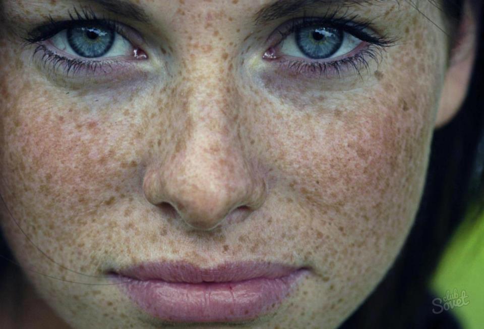 Уродливые изменения чужого лица, болячки на нем – к напряженности отношений, возможно, к разрыву и ссоре.