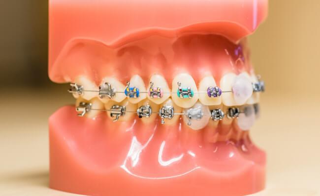 Лечение кисты зуба в домашних условиях народными средствами