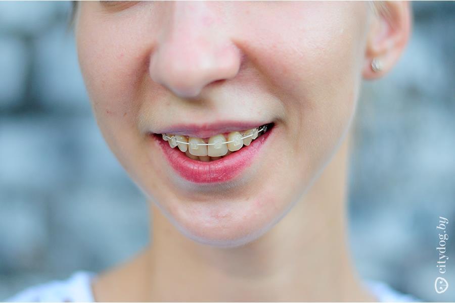К чему снятся брекеты на зубах