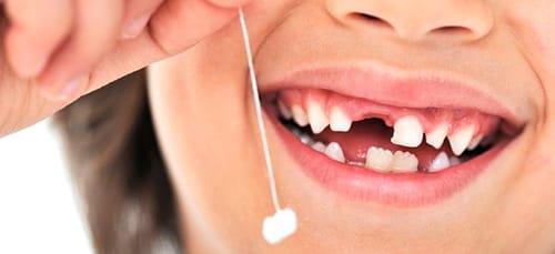 сонник вырвать зуб самому себе