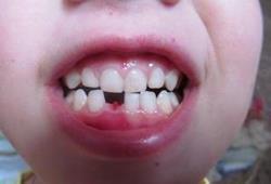 Выпал молочный зуб