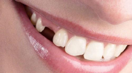 Выпал зуб из протеза к чему снится
