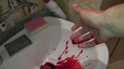 К чему снится порезанные руки в крови фото
