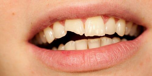 Фото К чему снится треснувший зуб без крови