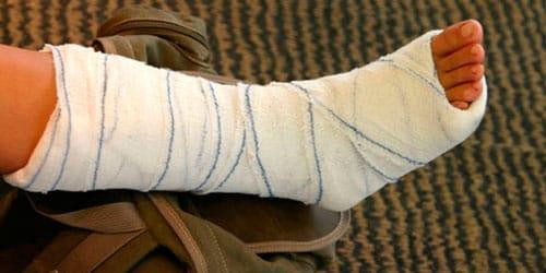 сонник сломать ногу