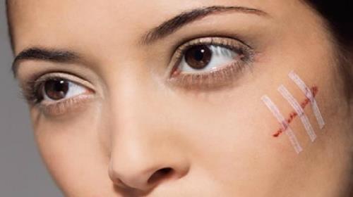 порезы на лице