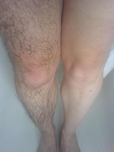 сонник волосы на ногах